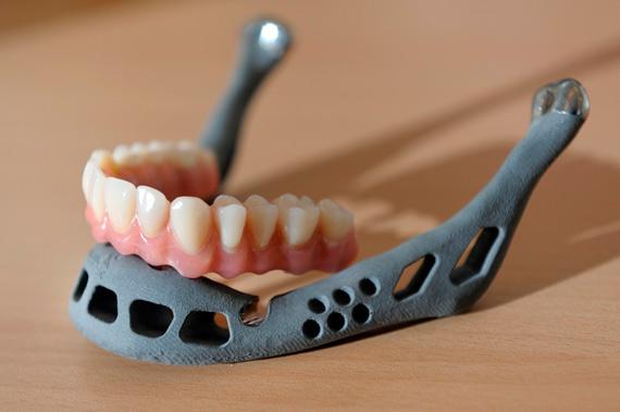 BBVA-OpenMind-Ventana-Impresoras-3D-protesis-4