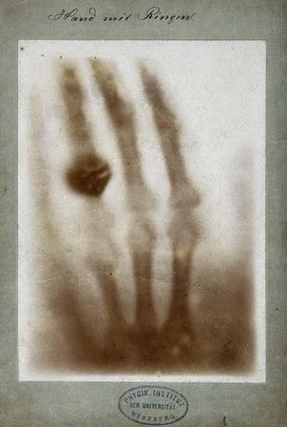 BBVA-OpenMind-galería-grandes-imágenes-de-la-ciencia-7-rayos-x