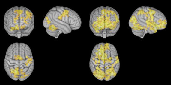 bbva-openmind-ventana-cerebro-cosas-que-cambian-4