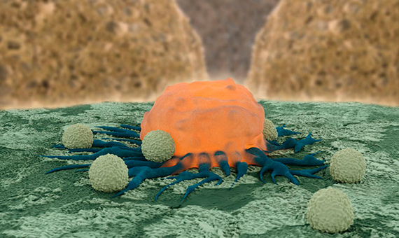 bbva-openmind-ventana-3-Cancer