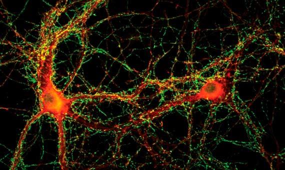 bbva-openmind.2-memoria-sinapsis
