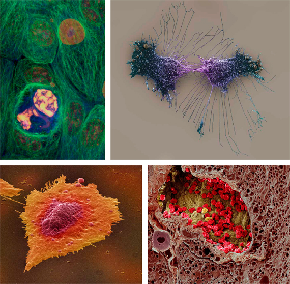 Clockwise, from top left: breast-cancer cells; HeLA cells; colon-cancer cells; and blood vessels in a melanoma.