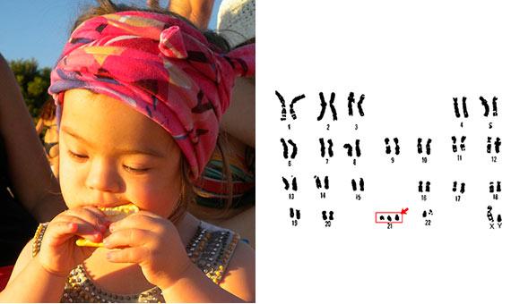 Cariotipo de trisomía 21 (síndrome de Down) / Imágenes: pixabay / Departamento de Energía de los EE.UU. Programa Genoma Humano .