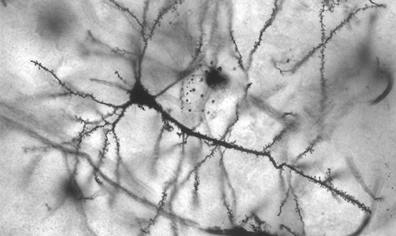 Neuronas del hipocampo amplificadas 40 veces