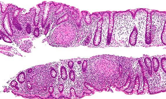 Los pacientes de Crohn tienden a poseer una variante de un gen que aumenta la absorción de un nutriente llamado ergotioneína. Crédito: Nephron