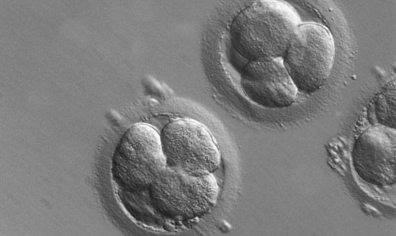 Ya han comenzado los ensayos experimentales para la eliminación de genes defectuosos en embriones humanos. Crédito: ZEISS Microscopy