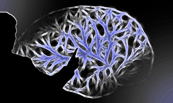 cerebro-mora