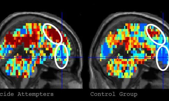 """Patrón de activación cerebral para """"muerte"""" en participantes que habían hecho un intento de suicidio, izquierda, en comparación con los participantes control, derecha. Crédito: Credit: Carnegie Mellon University"""