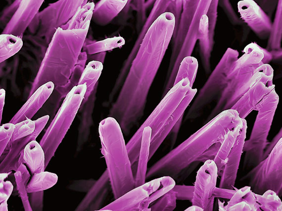 Colored scanning electron micrograph (SEM) of nanostructures formed on a vanadium and vanadiumoxide surface by a carbon-dioxide laser beam. The resulting nanostructures can have applications in various forms of electronics and nanotechnology