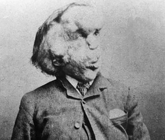 Un retrato de Joseph Merrick. Fuente: Wikimedia