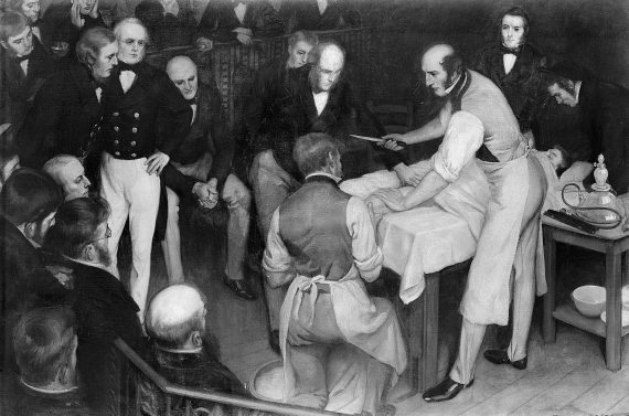 BBVA-OpenMind-Javier Yanes-Origen de la anestesia 5-The origin of painless surgery: the beginnings of anaesthesia Robert Liston was the first to use anaesthesia in Europe Credit: Wellcome images