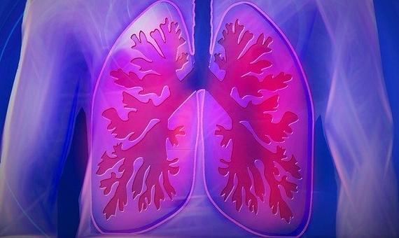 Imagen: Los pulmones comparten el mismo patrón de ramificación que los árboles porque ambas estructuras han evolucionado para cumplir una función similar: la respiración. / Fuente: <strong><em>CCO Public Domain</em></strong>