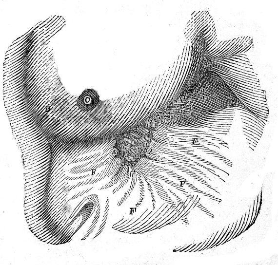 BBVA-OpenMind-Herida de bala-Beaumont_3-Seno y costado izquierdo, con la abertura llena con la válvula. Fuente: Galería de Wellcome Collection