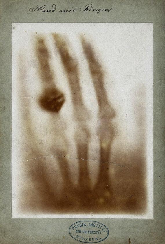 BBVA-OpenMind-Rayos x-Wilhelm Röntgen y los rayos que cambiaron nuestra visión del mundo 2 Una de las primeras radiografías realizadas por Röntgen: la mano izquierda de su mujer, Anna Bertha Ludwig. Autor: Wilhelm Röntgen